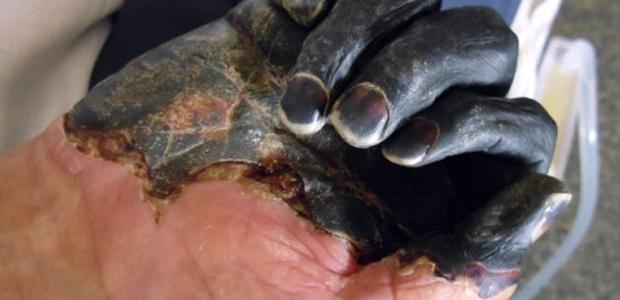Dünya Tarihinin En Tehlikeli Hastalıkları galerisi resim 3