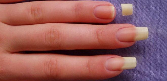 Появление в ночных грезах сломанных ногтей предупреждает об ухудшении здоровья и неприятностях в делах.