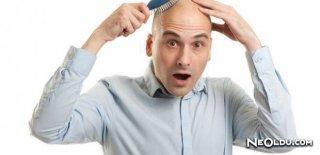 Saç Dökülme Yöntemleri ve Tedavisi