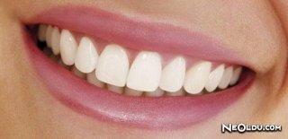 Zirkonyum Diş Tedavi