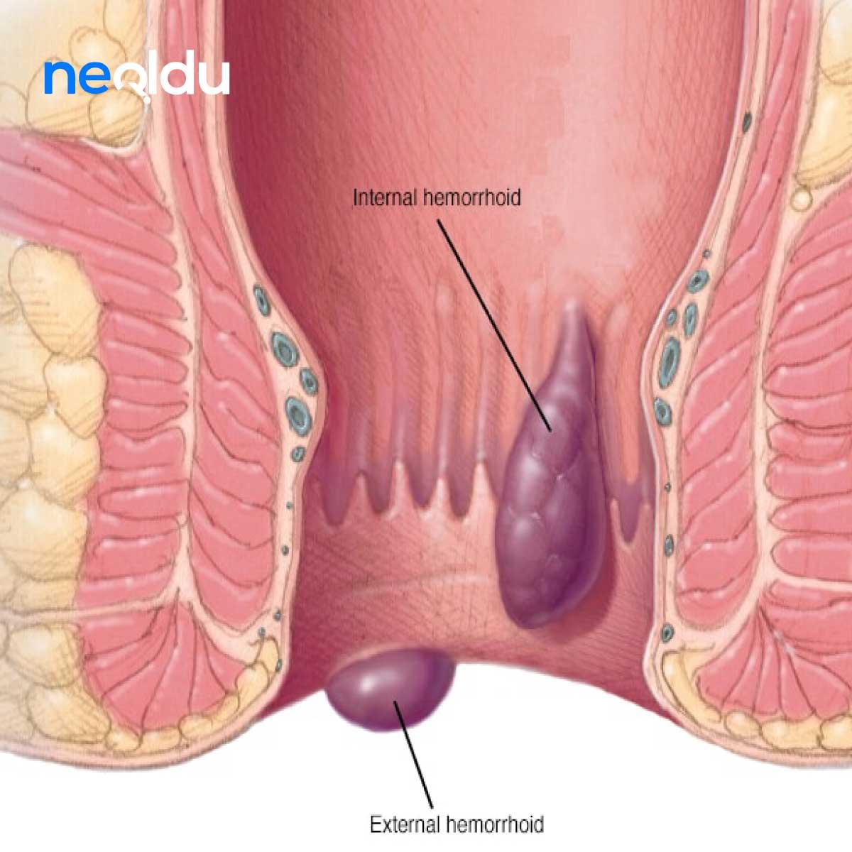 Hemoroid Dikkat Edilmesi Gerekenler