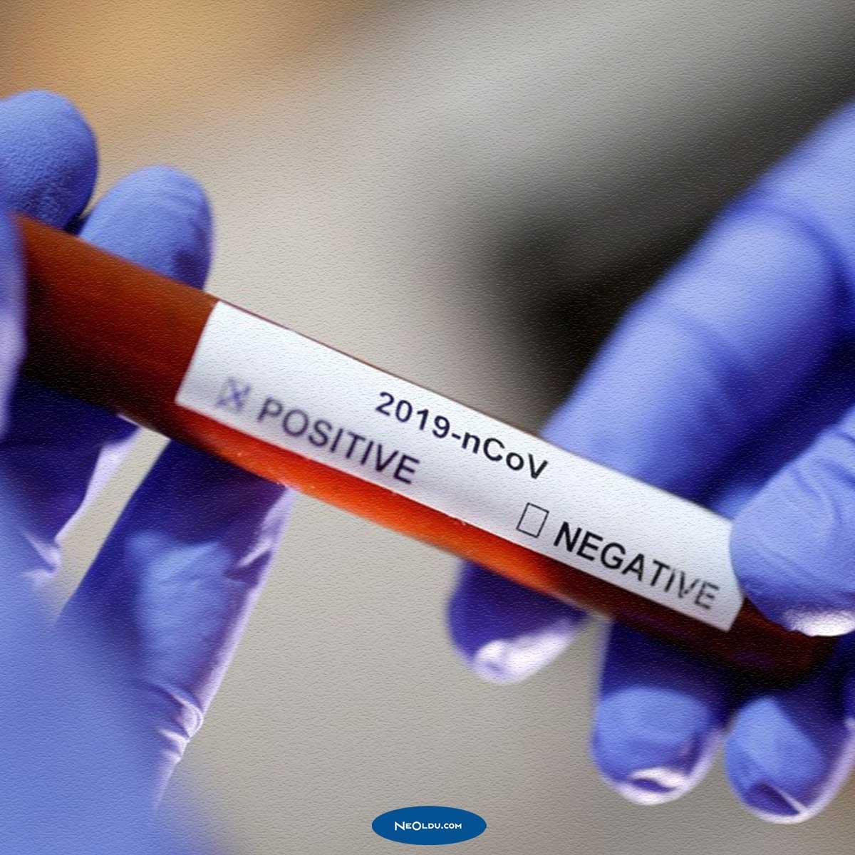 Kan Grubu Koronavirüs Riskini Arttırır mı