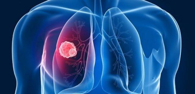akciğer enfarktüsünde balgam