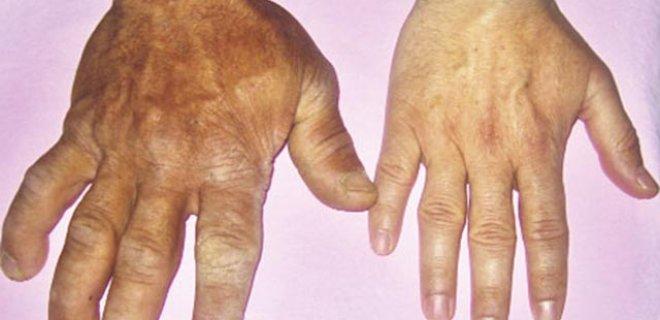 Akromegali belşrtileri
