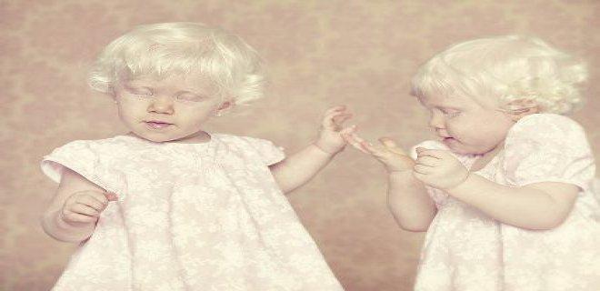 albinizm-hakkinda-bilinmesi-gerekenler-001.jpg