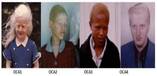 albinizm-hakkinda-bilinmesi-gerekenler-004.jpg