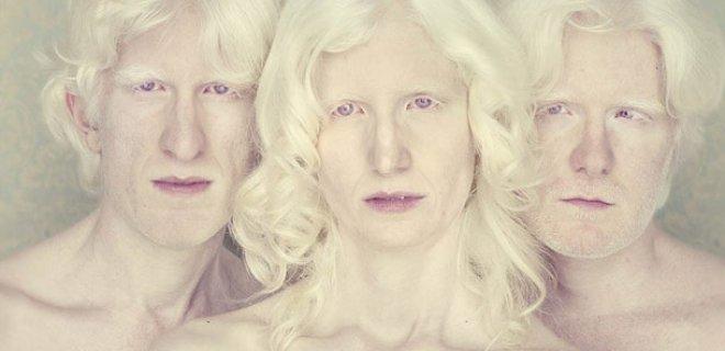 albinizm-hakkinda-bilinmesi-gerekenler-005.jpg
