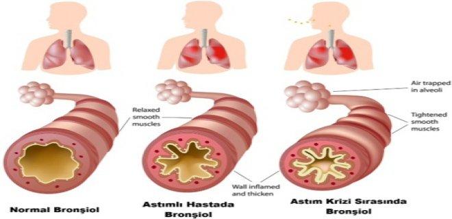 alt-solunum-yolu-enfeksiyonlarina-karsi-bitkisel-cozumler-008.jpg