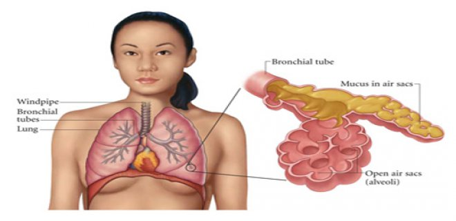 alt-solunum-yolu-enfeksiyonu-nedir-nasil-tedavi-edilir-001.jpg