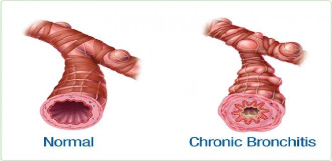 alt-solunum-yolu-enfeksiyonu-nedir-nasil-tedavi-edilir.JPG