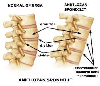 Ankilozan Spondilit sırt ağrısına neden olabilir