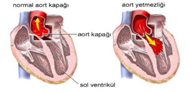 aort-kapak-hastaliklari-teshisi-ve-tedavi-yontemleri-001.jpg