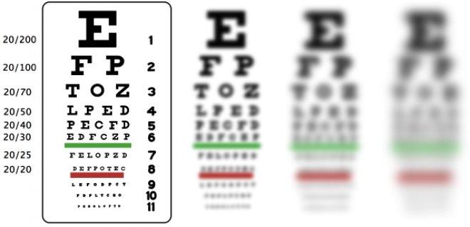 astigmat-sorunu.png