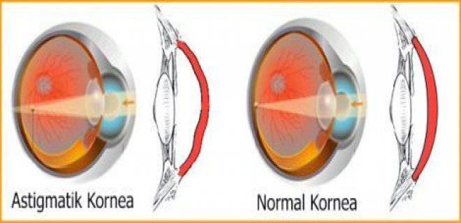 astigmatli-kornea.jpg