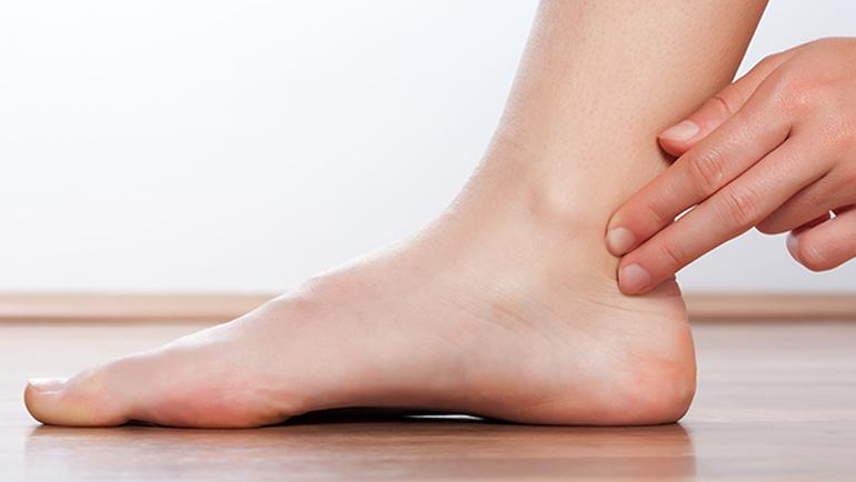 ayak çıtlaması nasıl önlenir
