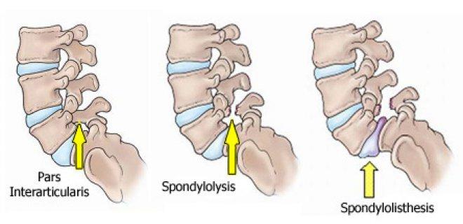spondylothesis l5-s1