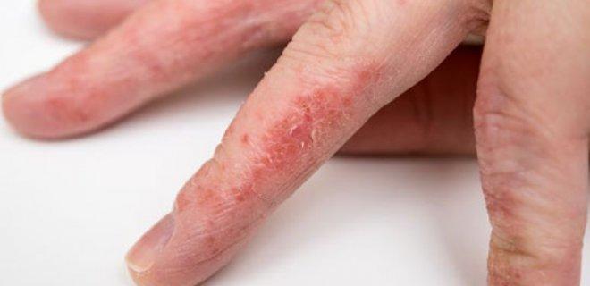 besin-alerjisi-belirtileri-ve-tedavisi-006.jpg