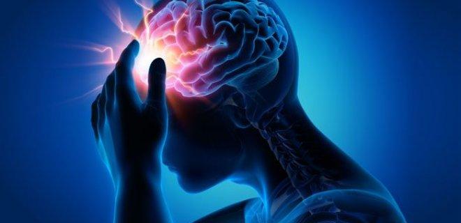 beyin-sorunlari.jpg