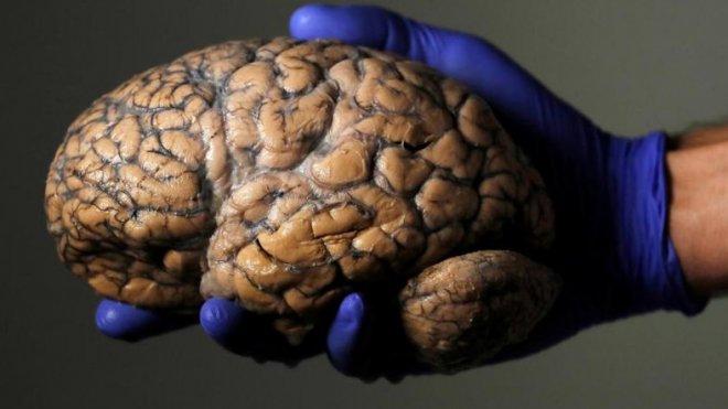 beyine-bagli-hastaliklar.jpg