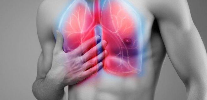 bronşektazi balgam
