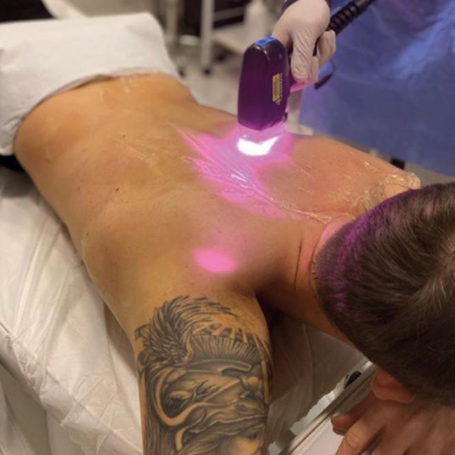 Buz lazer epilasyon