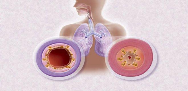 cocuklarda-solunum-yolu-enfeksiyonu-ve-tedavisi-009.jpg