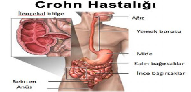 Crohn hastalığının belirtileri nelerdir Nasıl teşhis edilir
