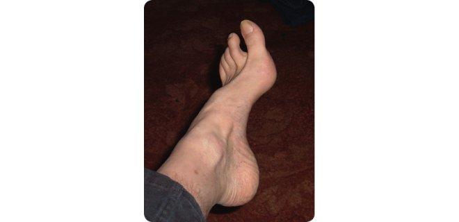 cukur-ayak-nedenleri.jpg