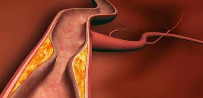 damar sertliği nedenleri