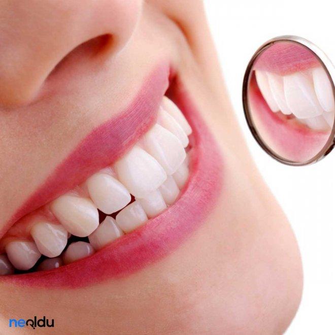 diş-eti-hastaliği-belirtileri-nelerdir.jpg