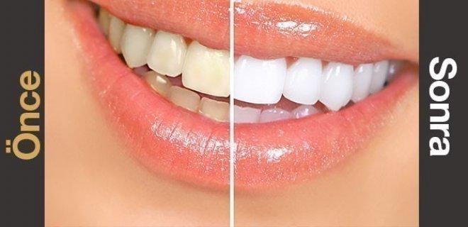 dis-beyazlatma-(bleaching)-003.jpg