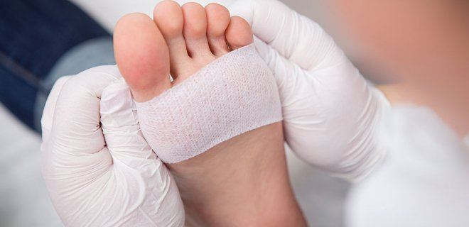 diyabetik-ayak-yarasi-tedavisi.jpg