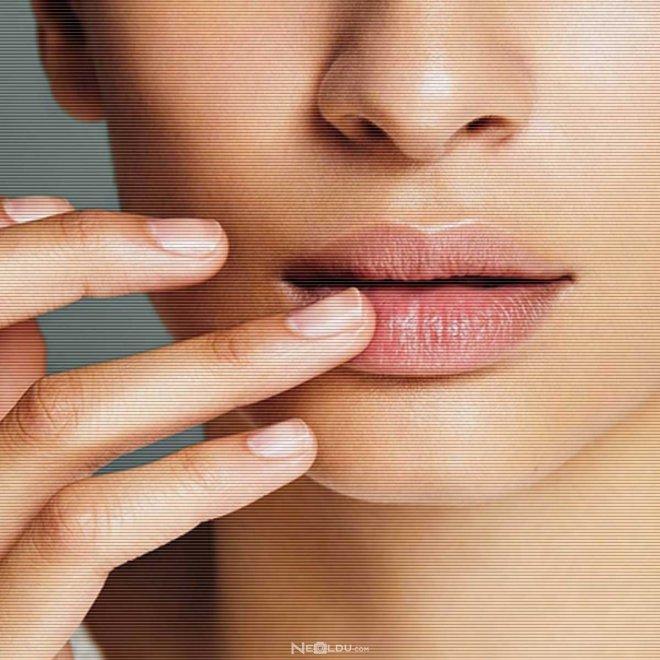 dudak-kuruluğu-hangi-vitaminin.jpg