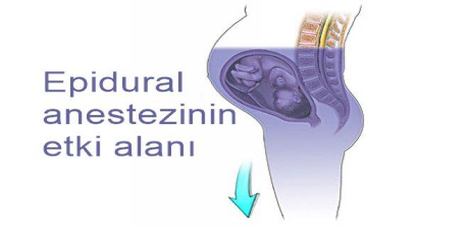 epidural-anestezi-etki-alani.jpg