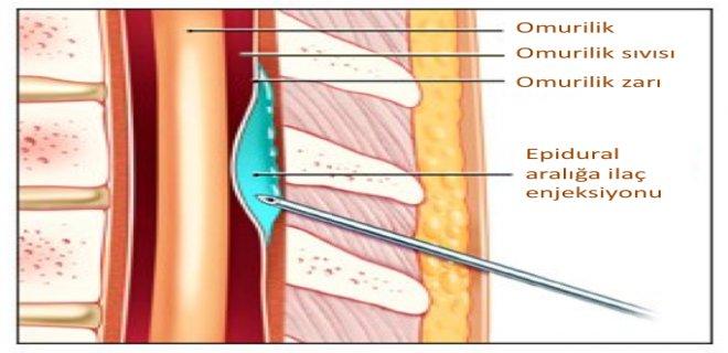 epidural-anestezi.png