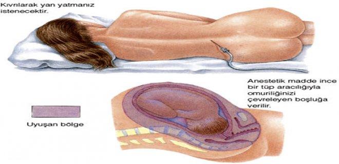 epidural-normal-dogum.jpg