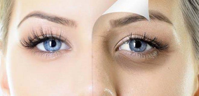 under-eyes-005.jpg