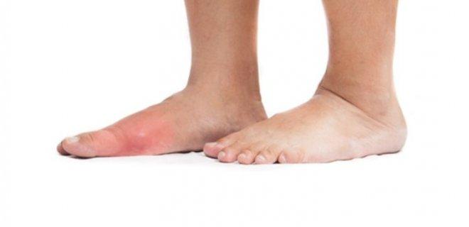 gut hastalığı teikleyen faktörler