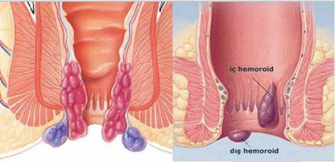 hemoroid-004.jpg