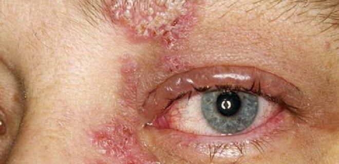herpes simpleks konjonktivit ve keratiti