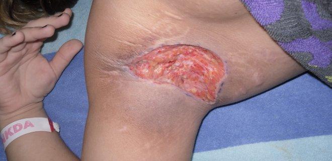 hidradenitis-supurativa-nedeni.JPG