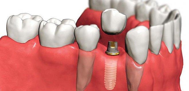 implant-tedavisi.jpg