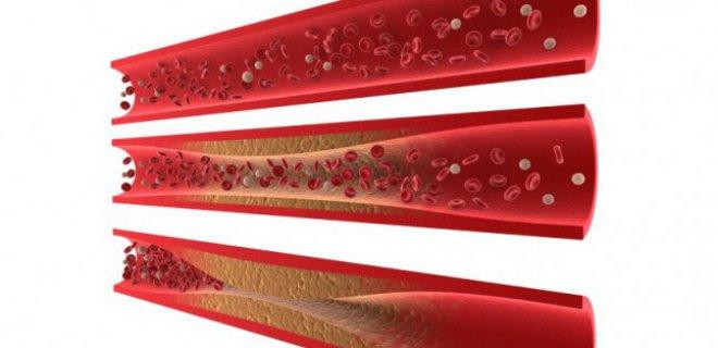 iskemik-kalp-hastaligi-teshisi-ve-tedavi-yontemleri-002.jpg