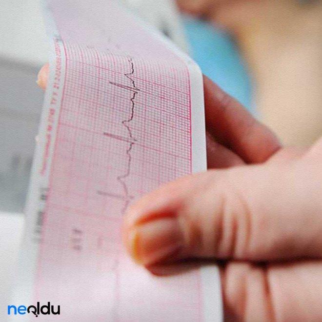 kalp-ritim-bozuklugu-nedenleri-nelerdir-001.jpg