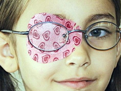 Göz tembelliği kapama tekniği tedavisi