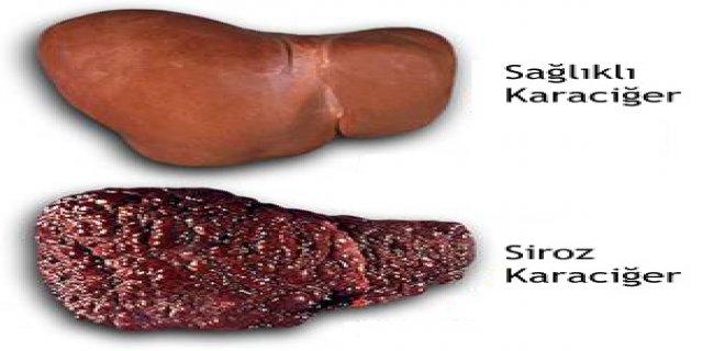 karaciger-kanseri-nedenleri.jpg