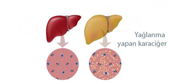 Karaciğerin yağ dejenerasyonu. Nedenleri, Belirtileri ve Tedavisi