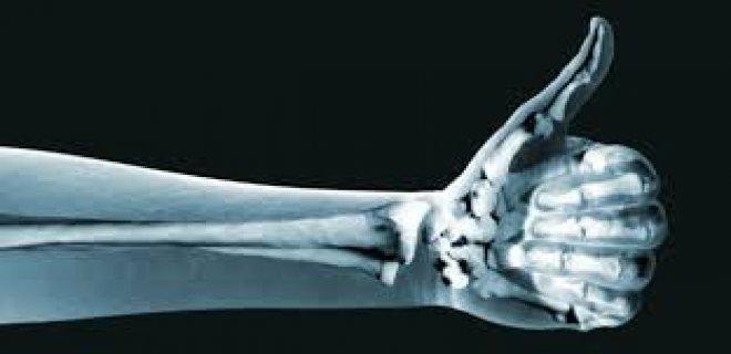 kemikleri-guclendirir-001.jpg