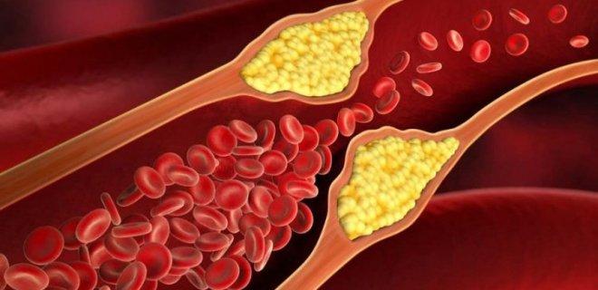 kolesterol-017.jpg
