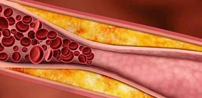 kolesterole-faydalidir.jpg